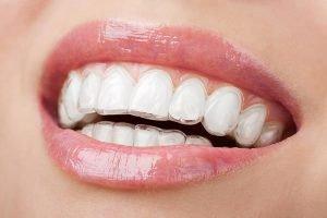 Invisalign | Dentist Beenleigh