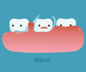 The Problem With Bleeding Gums - beenleigh dentist