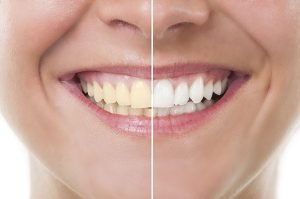 Yellow Teeth Treatment Secrets To Whiter Smile