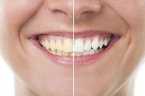 Yellow Teeth Treatment Secrets To Whiter Smile