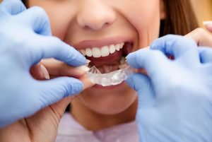 Alex Bratic Dental | Invisalign Dentist Beenleigh