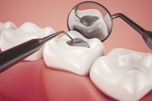 Alex Bratic Dental Care | Lost Damaged Fillings, Crown Or Inlay Onlay | Dentist Beenleigh