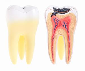 Alex Bratic Dental Care | Dental Abscess | Dentist Beenleigh