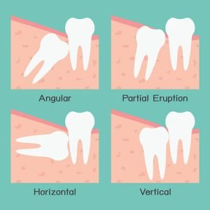 Wisdom Tooth Extraction In The Beenleigh Area